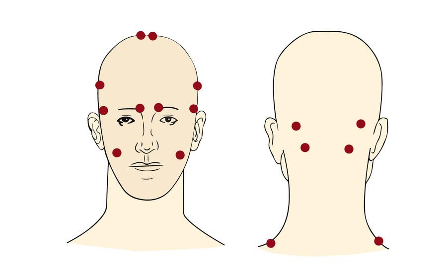 Точка, от которой болит голова